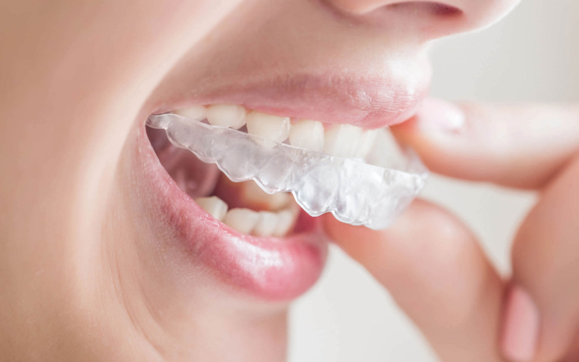 Invisalign Braces Downey - Your Downey Dentist