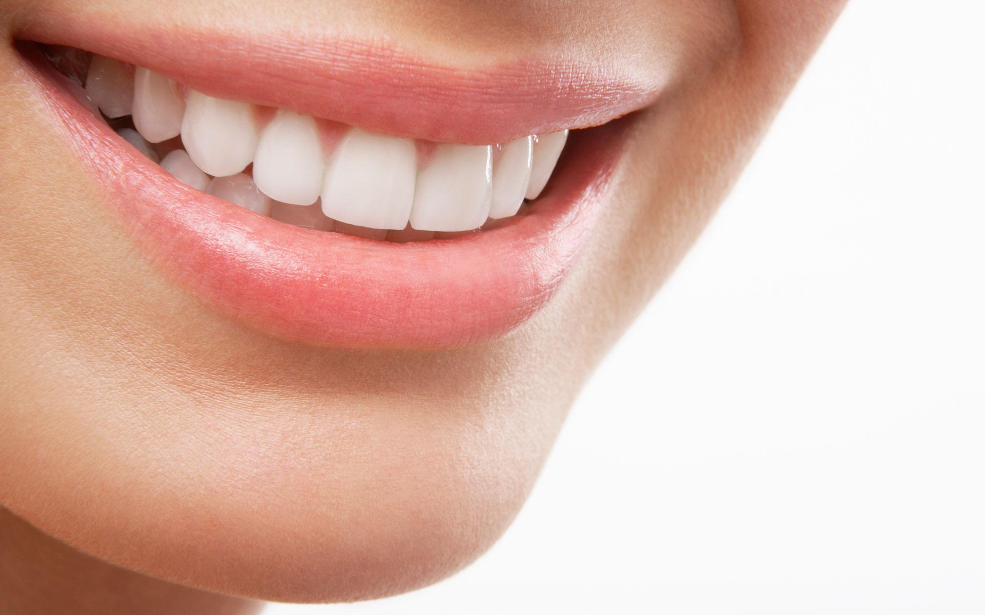 Veneers Downey - Your Downey Dentist